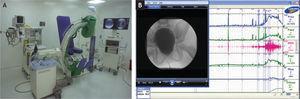 A: sala de videourodinamia. B: trazado de videourodinamia e integración de la imagen en video o estática con los hallazgos del estudio funcional.
