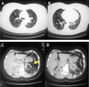 A y B (arriba): Tomografía axial de tórax. C y D (abajo): Tomografía axial de abdomen.