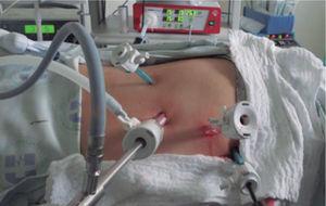 Ubicación de trócares para adrenalectomía laparoscópica derecha.