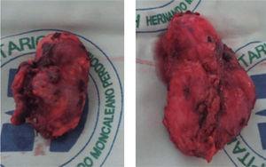 Pieza quirúrgica de adrenalectomía laparoscópica bilateral. El estudio histopatológico reportó feocromocitoma maligno bilateral.