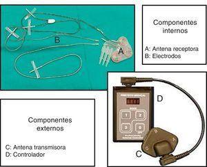 Componentes internos y externos del SARS.A: antena receptora; B: electrodos; C: antena transmisora; D: controlador.