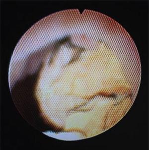 Ureteropielorenoscopia: Gran cálculo localizado en cáliz superior.