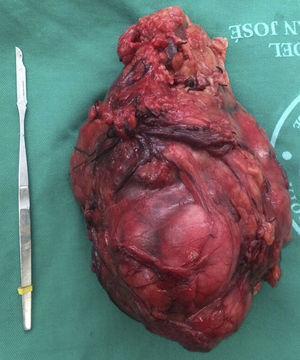 Pieza quirúrgica extraída de carcinoma renal, riñón derecho.