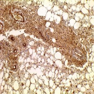 IHQ CD 117 positivo en células tumorales.