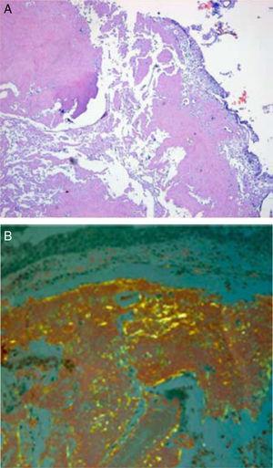 A) Coloración de hematoxilina y eosina. B) Coloración rojo Congo.