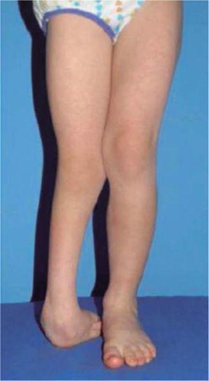 Paciente en posición bípeda. Nótese el acortamiento de la extremidad derecha, la oblicuidad pélvica, la deformidad angular de la rodilla y la deformidad del pie.