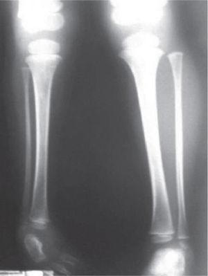 Radiografías de piernas comparativas. Nótese la hipoplasia del peroné derecho.