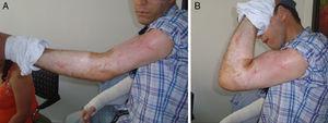 Recuperación de la flexo-extensión del brazo izquierdo.