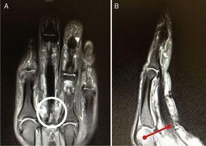 A: Imagen de corte coronal de RM donde se ven los tendones flexores del tercer dedo y el tejido fibrótico en el área donde debería estar la polea A2 (círculo). B: Imagen de corte sagital donde es fácil apreciar el aumento del espacio entre los tendones flexores y el centro de rotación articular de la MCF (línea).