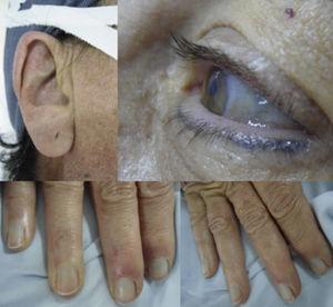 Pigmentación oscura en los lóbulos de las orejas, las escleras y las uñas.