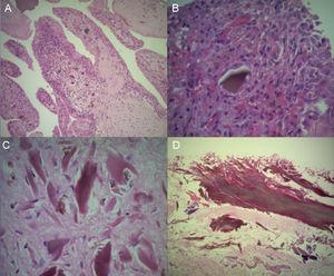 Imágenes histológicas. A: Proliferación papilar sinovial. B y C: Hiperplasia e hipertrofia de sinoviocitos con depósito de AH. D: Tendón del bíceps con depósito de AH.