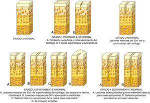 Sistema de clasificación de la Sociedad Internacional para la Reparación del Cartílago (ICRS).