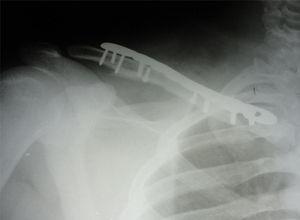Radiografía postoperatoria de la reducción abierta más osteosíntesis con placa anatómica LCP. Se simplifica la fractura mediante la colocación de tornillos de compresión interfragmentaria.