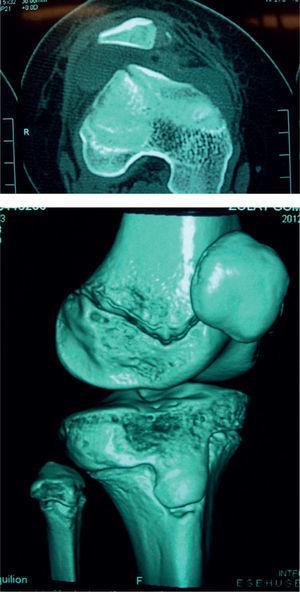 Tomografía computarizada de rodilla. Se evidencia un fragmento grande parapatelar medial y un fragmento en la escotadura patelar del fémur, además de una subluxación lateral de la rótula.