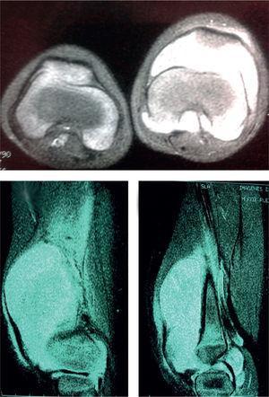 La resonancia magnética muestra lesión quística en la bursa suprapatelar que afecta a la articulación patelofemoral y femorotibial, no infiltrante a estructuras óseas o de tejidos blandos. El radiólogo informa de sarcoma sinovial, sinovitis y condromatosis de la rodilla.