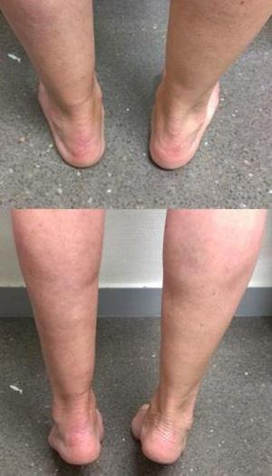 Fotos clínicas en bipedestación y de puntillas a los 5 meses de la lesión.
