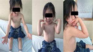 Arcos de movilidad a los 14 meses tras la cirugía.