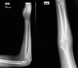 Radiografía de codo AP y lateral a los 6meses tras la cirugía.