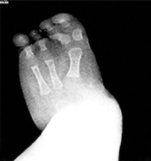 Radiografía AP del pie del paciente, en la cual se aprecia la presencia de 3rayos.