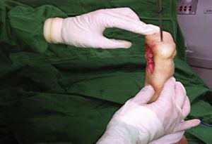 Luego de la cirugía se nota la recuperación de la alineación del talón.