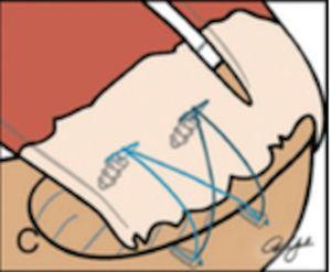 Esquema de doble fila. Tomado de Ferry AT, Provencher MT, Yanke A, Verma NN, Bach BR, Romeo A. Double-row rotator cuff repairs: Biomechanical rationale and surgical techniques. En: Warren RF, Craig EV, eds. Techniques in shoulder and elbow surgery. Vol. 9. Philadelphia: Lippincott Williams & Wilkins; 2009. p. 2.