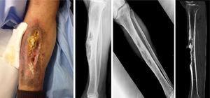 Lesión de aspecto ulceroso longitudinal (10-15 cm) a nivel pretibial de pierna derecha con supuración y reacción exofítica en su interior (izquierda). Radiografía a su llegada a urgencias con lesión de cortical anterior de tibia en su tercio medio (centro). Tomografía computarizada en que se observa la desestructuración ósea pretibial compatible con osteomielitis crónica (derecha).