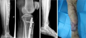 Radiografía tras primer tiempo quirúrgico (colocación de rosario de antibiótico y tapa anterior en región de tibia resecada; izquierda). Radiografías tras segundo tiempo quirúrgico (colocación de clavo intramedular con antibiótico; imágenes centrales). Aspecto de la piel del paciente posterior al colgajo cutáneo (derecha).