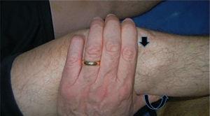 Manifestación del Signo. *Flecha curva: muestra la dirección de la fuerza y el sentido en que se subluxa la tibia. Flecha recta: muestra la subluxación anterior de la tibia sobre el fémur.