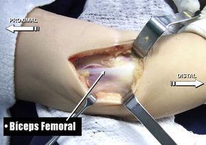 Disección del tendón del bíceps femoral. Liberación de la bandeleta isquiotibial.