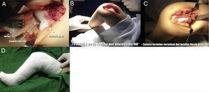 A) Exploración de la articulación femorotibial y rotulofemoral. B) Finalizada la liberación periarticular, se consigue la flexión completa de la rodilla. C) Sutura terminoterminal del tendón del recto anterior con la rodilla en flexión de 90°. D) Inmovilización postoperatoria con yeso inguinopédico.