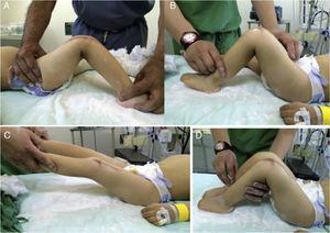 A-D) Imágenes del resultado postoperatorio de ambas rodillas. La rodilla derecha completa 2meses de cirugía. La rodilla izquierda completa 1 mes de cirugía.