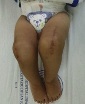 Movilidad de ambas rodillas en el seguimiento postoperatorio. Rodilla derecha: 5meses. Rodilla izquierda: 4meses.