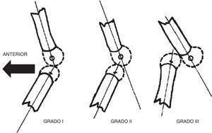Grados de luxación congénita de la rodilla mediante radiografía lateral. Tomada de Jacobsen K, Vopalecky F. Congenital dislocation of the knee. Acta Orthop Scand. 1985;56:1-7.