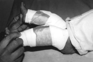 Inmovilización en férulas anteriores de yeso después de la manipulación y movilización en flexión de las rodillas en un paciente con LCR bilateral.