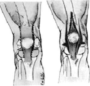 Técnica de Curtis y Fisher para la LCR. A) Líneas de incisión para la liberación de la cápsula anterior en sentido interno y externo, así como la liberación interna y externa del aparato extensor. B) Corrección después de la liberación de las partes blandas y del alargamiento del músculo recto femoral. Tomado de Bell MJ, Atkins RM, Sharrard WJ. Irreductible congenital dislocation of the knee: Aetiology and management. J Bone Joint Surg Br. 1987;69:403-6.