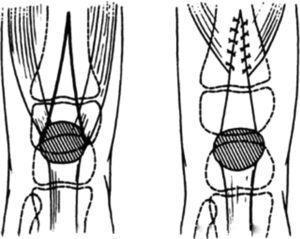 Técnica de Curtis y Fischer para la LCR. Líneas de incisión para la plastia en V-Y. Tomado de Curtis BH, Fisher RL. Congenital hyperextension with anterior subluxation of the knee. Surgical treatment and long-term observations. J Bone Joint Surg Am. 1969;51:255-69.
