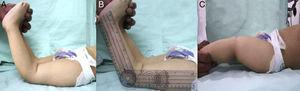 Valoración clínica de niño de 2años con luxación congénita de la rodilla bilateral. A y B) Hiperextensión de las rodillas de 70°. C) Flexión de las rodillas bilateral de 10°.