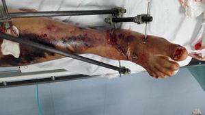 Tratamiento ortopédico.
