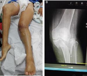 A) Luxación de rodilla. B) Radiografía.