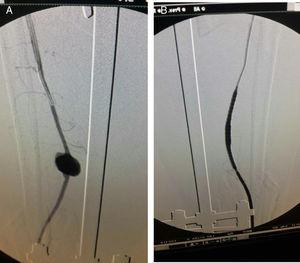 A) Pseudoaneurisma de arteria tibial anterior. B) Manejo intravascular con stent cubierto.