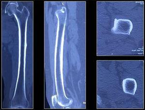 Tomografía de fémur izquierdo. Se visualiza cortical ósea continua, osteófitos marginales en cóndilo medial y lateral.