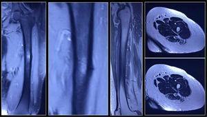 Se evidencia área de edema óseo y presencia de trazo de fractura transversal en cortical externa tercio medio de fémur izquierdo.