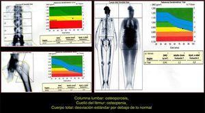 Densitometría ósea: indica osteopenia en fémur.