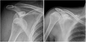 Luxación glenohumeral derecha (izquierda) y control radiológico postreducción cerrada (derecha). Archivo del Dpto. de Imágenes Hospital Alcívar.