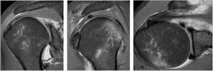 RMN: Desinserción anteroinferior de rodete glenoideo. Lesión de Bankart. Archivo del Dpto. de Imágenes Hospital Alcívar.