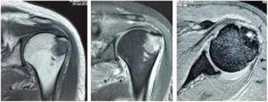 RMN de hombro izquierdo: imagen compatible con fractura – avulsión del troquiter. Aparente desgarro del receso inferior de la cápsula articular. Archivo del Dpto. de Imágenes Hospital Alcívar.