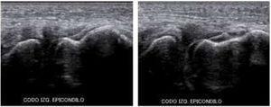 En estudio dinámico por ecografía se observa separación de la articulación del codo compatible con ruptura del ligamento colateral externo. Archivo del Dpto. de Imágenes Hospital Alcívar.