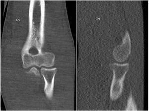 TAC de codo izquierdo: No se observan alteraciones de las estructuras óseas. Archivo del Dpto. de Imágenes Hospital Alcívar.