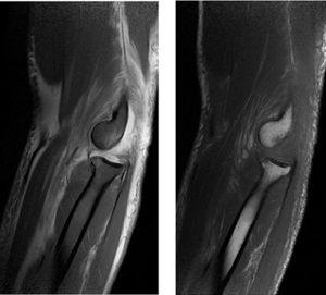 RMN de codo izquierdo (corte sagital): Incremento de la intensidad de señal a nivel de los músculos epicondíleos en relación a desgarro parcial. Archivo del Dpto. de Imágenes Hospital Alcívar.
