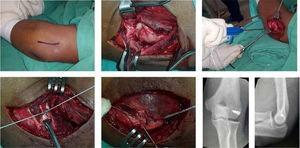 Sutura y anclaje de Ligamento Colateral Externo y de músculos epicondíleos en codo izquierdo. Archivo fotográfico Hospital Alcívar.
